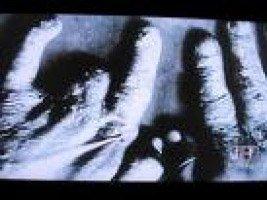 図10.ダリの手