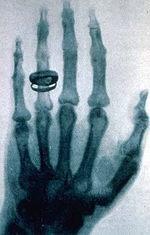 図14..ケリカーの手